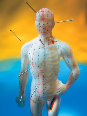 akupunktur-ankara